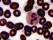 Blood corpuscles; autor: V.Dvoryanchikov, http://www.filix.ru